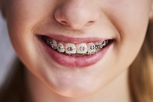 young girls with braces