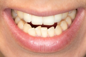A person with crowded lower teeth