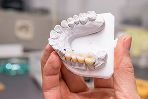 Model smile with dental crown