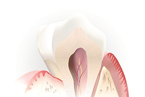 Animation of inside of the tooth