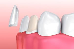 porcelain veneers in Irving