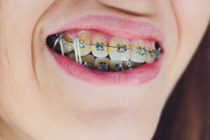 elastics attached to braces in Irving