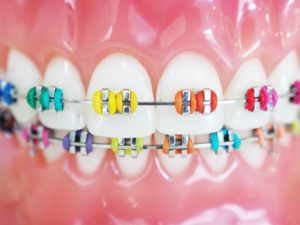 a model of a mouth with braces in Irving with colorful brackets