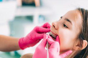 a dentist cleaning a patient's braces