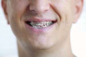 a person smiling and wearing braces